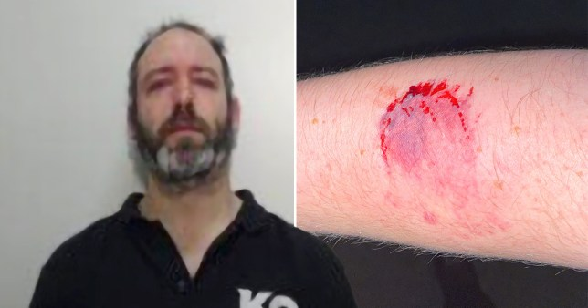 Daniel Chipchase and the bite parks he left in the arm of PC Ashley Marsden during an arrest in Middleton, Greater Manchester