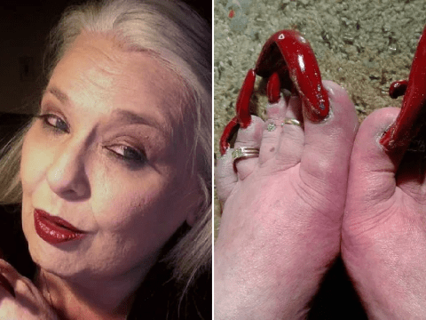 Feet Week: What it's like to live with extremely long toenails
