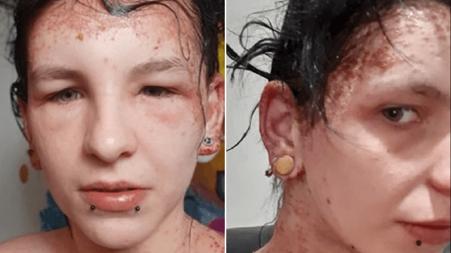 Lauran Rootes, 22, dyed her hair black using Schwarzkopf Live XXL and suffered a severe reaction