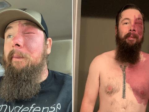 Vile bullies branded man Batman villain and 'burns victim' because of his birth mark