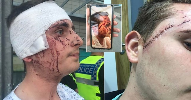 Teen's face split open after he was stabbed 'out of nowhere' at station