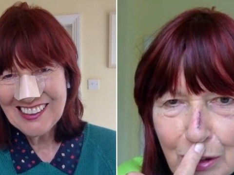 Janet Street-Porter opens up on skin cancer operation: 'It's just a scar, I'm feeling very positive'