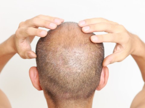 Cure for baldness possible after molecule breakthrough, study claims