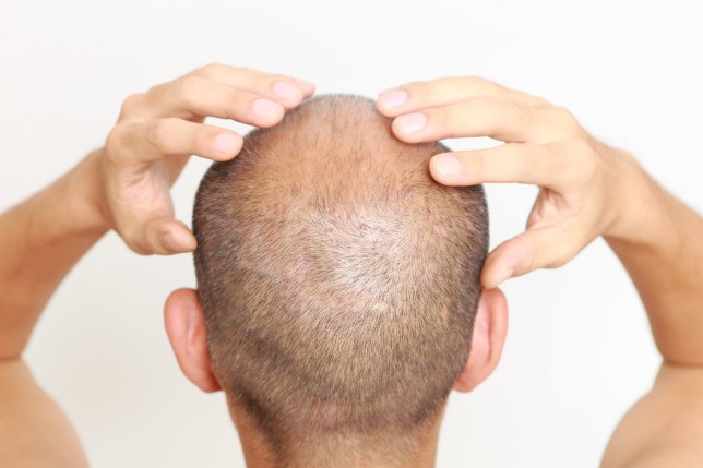 Picture of a balding man with his hands massaging his scalp (Credits: Getty Images/iStockphoto)