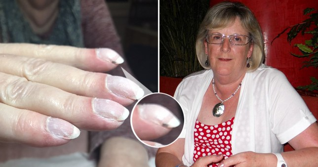 joan martindale's clubbed nails revealed she had cancer