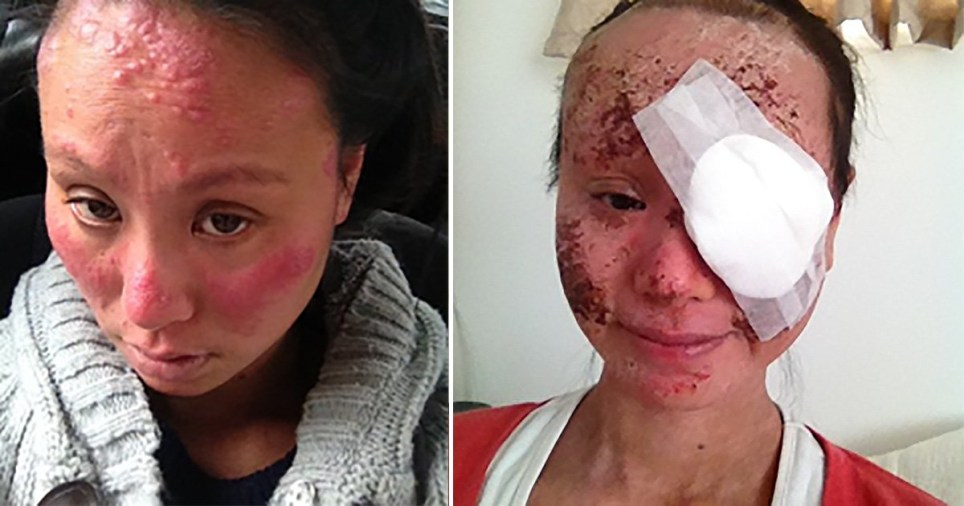 Anita Wong, 36, from Auckland, New Zealand, who suffers from eczema and lost sight in one eye after using too much topical steroid cream.