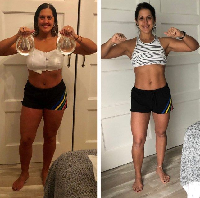 Rachel before and after her explant surgery (PA Real Life/Collect)