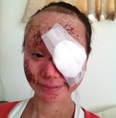 AUCKLAND, NEW ZEALAND: Anita after cataract surgery in January 2014. THIS WOMAN reveals how steroid creams left her with SIGHT LOSS in one eye and pain so severe that it HURT TO BREATHE. Full time mum of two, Anita Wong (36) from Auckland, New Zealand, was first diagnosed with eczema when she was five-years-old and felt embarrassed growing up as she didn?t know how to explain her skin condition to her peers, who feared it was contagious. Anita had countless trips to doctors, dermatologists, and allergy specialists to try to keep her eczema at bay with the use of emollient, topical steroid, anti-fungal and immunosuppressant creams, oral steroids, antibiotics, and antihistamines. As well as this, Anita tried natural remedies ? all of which would work for a short while before her eczema returned with a vengeance. When she fell pregnant with her first child, Kingsley (9) Anita decided to stop using steroids to treat her skin which caused her skin to flare on her face. In May 2011, whilst adjusting to being a new mum, Anita went back to her doctor for her eczema and was prescribed a topical steroid to use on her face which helped clear her skin. In July 2013, Anita was shocked to be diagnosed with cataracts in both eyes due to overuse of steroids. She had her cataracts operated on in January 2014 and has been left with permanent damage in her right eye where she has aphakia, the absence of a lens due to surgery. Upset that her eyesight was in jeopardy, Anita decided to ditch medicine to treat her eczema and within days her skin started to go through the painful topical steroid withdrawal (TSW) process which caused cracking, flaking, redness and weeping which kept Anita awake at night and on the worst days made it painful to even breathe. By January 2018, Anita?s skin started to look normal again and now she is proud to have the skin she?s always dreamt of since childhood and it?s thanks to the years long detox she has put herself through. Mediadrumworld / Anita Wong