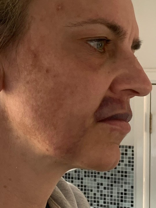 A woman who had lip fillers done in her home during lockdown has been left with a horribly bruised face. Kelly Rogers, 40, from Cardiff, Wales, .