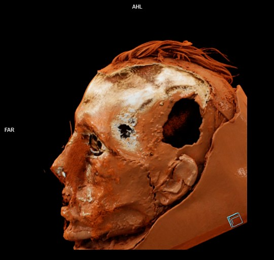 CT scan of the skin and skull with the scar and the trepanation hole visible