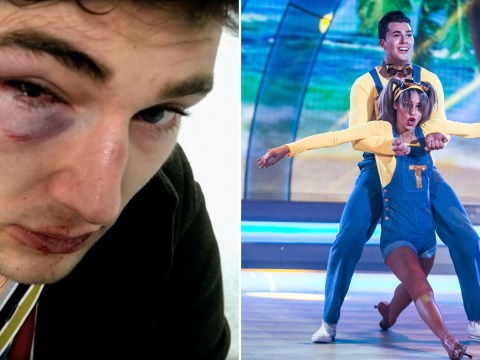 Curtis Pritchard feared Dancing With The Stars career was over after horrific nightclub attack
