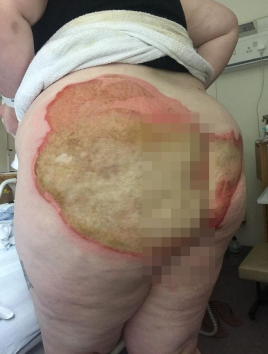 **GRAPHIC CONTENT WARNING** PIC BY CATERS NEWS (PICTURED Chralotte's burns slowly healing) A young woman was left with excruciating burns on her derriere after a radiator pipe exploded. Charlotte Beeton, 27, from Southampton, suffered an epileptic seizure while washing her hair and landed on a radiator pipe, covering her lower body in boiling water. Thankfully her fiance, David Channel, 28, heard the commotion and was able to move Charlotte to safety before she was scolded any further. But the finance worker was left with third degree burns across her bottom - something that required five hours' worth of skin graft surgery, with skin being taken from her thighs. SEE CATERS COPY