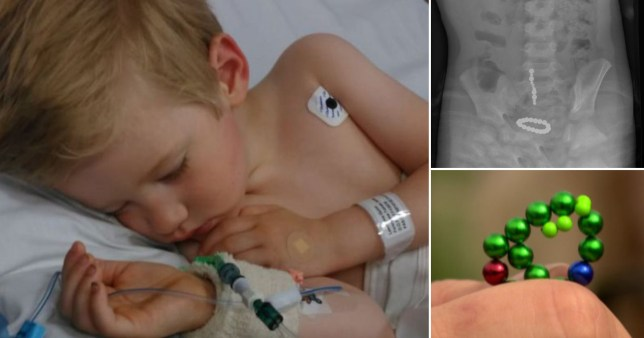 Boy, 3, has part of gut removed after swallowing magnets