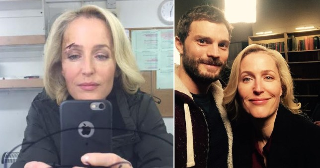 Gillian Anderson pictured on set of The Fall with cut eye and with Jamie Dornan