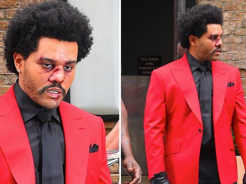 The Weeknd rocks bloodied and bruised face for MTV VMAs rehearsal but don't worry it's all for show