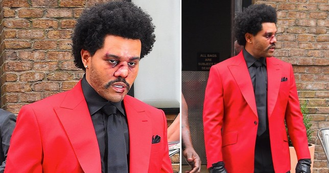 The Weeknd with bloodied face