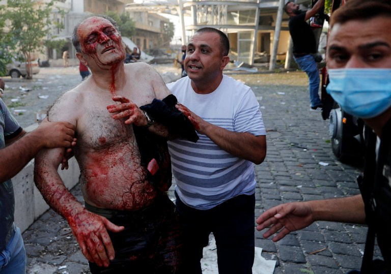 Civilians help an injured man at the explosion scene that hit the seaport of Beirut, Lebanon, Tuesday, Aug. 4, 2020. (AP Photo/Hussein Malla)