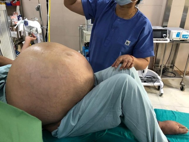 Doctors prepare to remove the tumour in Delhi, India. See SWNS copy SWOCtumour: New Delhi ? Amid the ongoing Covid-19 pandemic, with cases soaring in India ? doctors at Indraprastha Apollo Hospital ? a private hospital in Delhi, has successfully removed a world?s largest ovarian tumour from a 52-year-old woman name withheld on Saturday. Much to the surprise, the tumour has weighed more than 110 pounds (50 kgs). Pertinently, the New Delhi-based patient Nirmala (name changed) weighed 106 kg before the operation. For over a couple of months, the quinquagenarian who gained weight rapidly had faced multiple problems before her family consulted a senior consultant.