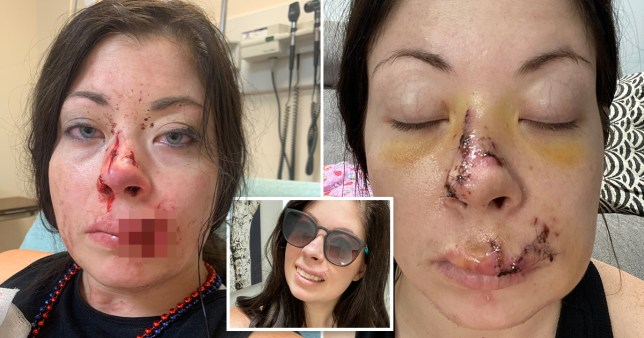 Amber Esala was left with scars on her face after the attack