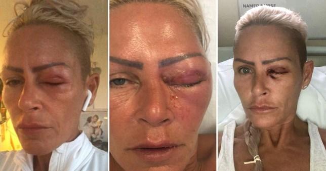 Mum with swollen eye