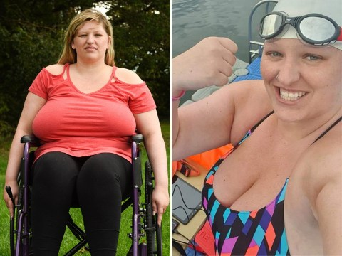 Woman says her 42I breasts caused her spine to collapse and left her using a wheelchair