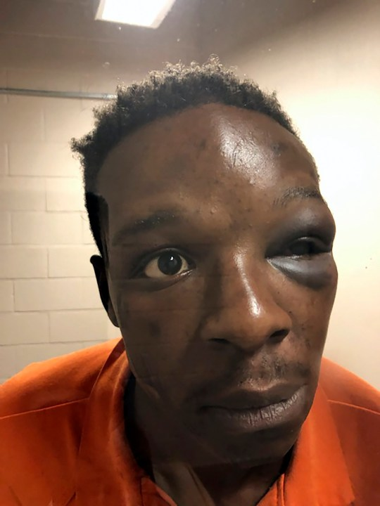 Roderick Walker at the Clayton County Jail in Jonesboro, Ga.with a badly bruised eye.
