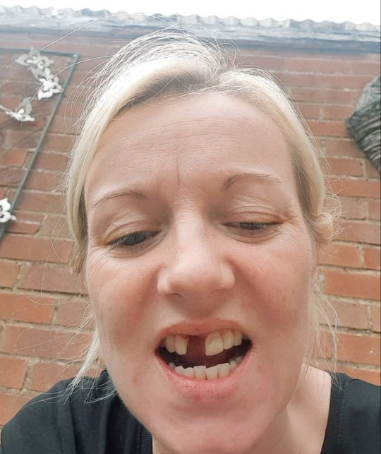 MERCURY PRESS. Northants, UK. (Pictured: Liversedge knocked out Katrina Pidden's tooth.) A domestic abuse survivor thought she was going to die when her violent ex kept her prisoner and smashed her face with a bathroom door after she went out with friends. Katrina Pidden, 39, was left with severe bruising after Mitchell Liversedge, 25, attacked her in their home. The thug held her prisoner for hours, locked her out of the house in the rain and shoved her during the year of abuse. (SEE MERCURY COPY)