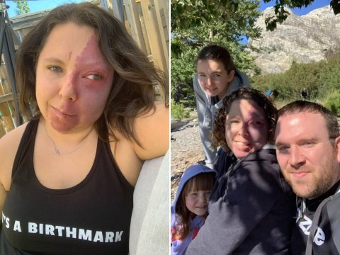 Mum called 'two-face' due to her birthmark thought she would never find love, but now has dream family