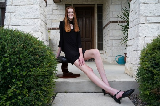 Teenager breaks record for world's longest legs | Metro News