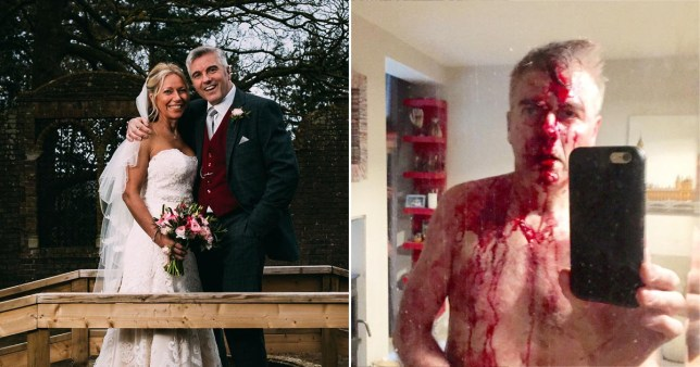 Married At First Sight stars David Pugh and Shareen