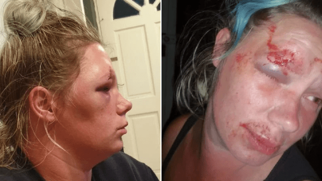 woman battered by taxi driver