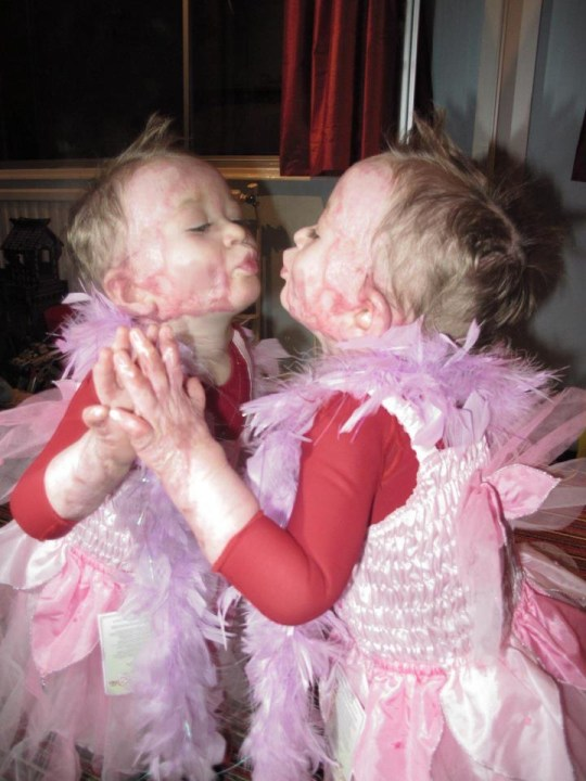 Delilah Care blows a kiss in her princess dress in a picture showing how she has learnt to love her scars (Picture: Scar Free Foundation)