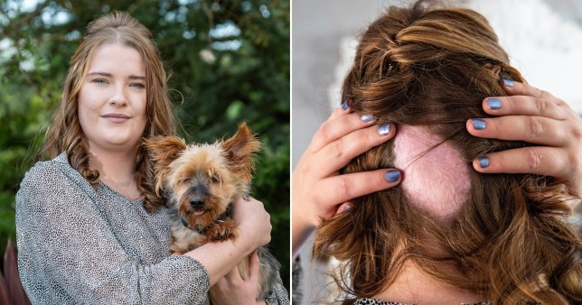 Woman who has a bald patch on her head pictured with the dog who saved her