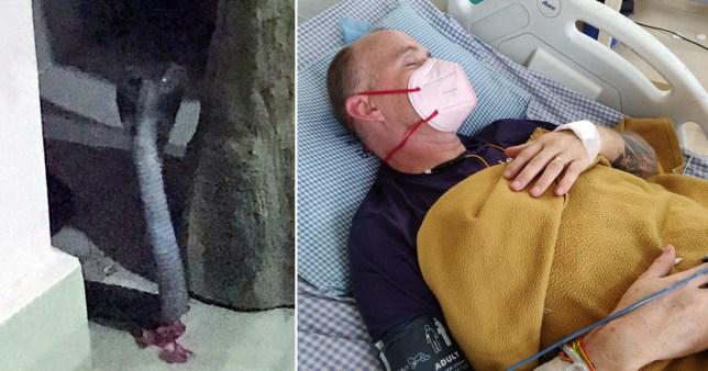 British dad fighting Covid blinded and paralysed after Cobra bite