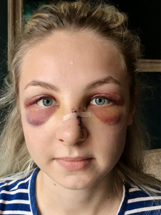 The Leicestershire Police officer after being punched in the face