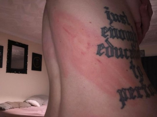 A red mark on Seren's back after Paul Robert Morgan Richards-Keegan hit her while she was in bed.