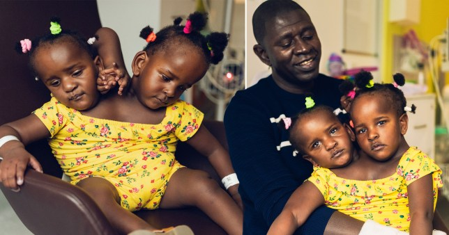 Father Ibrahima Ndiaye with his daughter who are conjoined twins