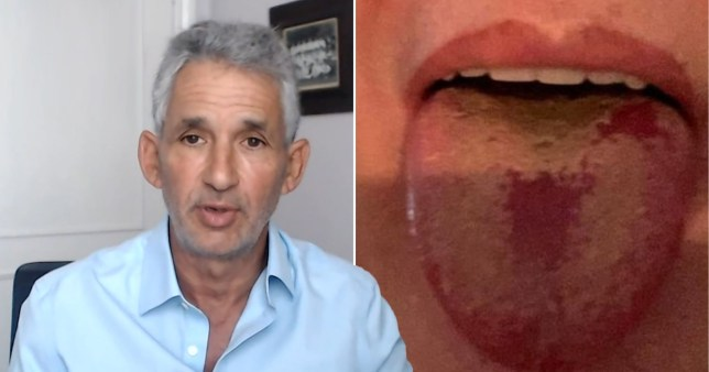 Professor Tim Spector warned about Covid tongue as a less common symptom of coronavirus.