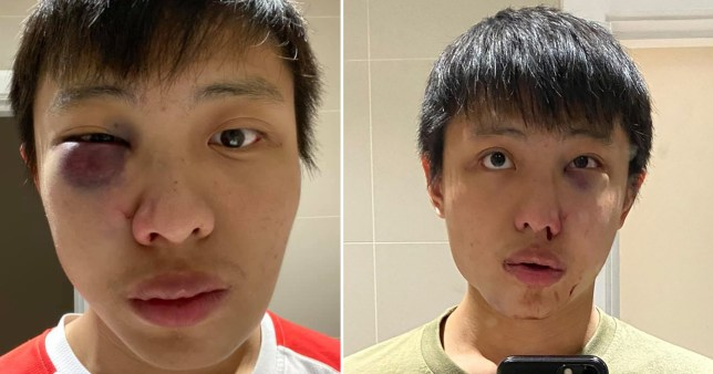Attack on Asian student over Covid 'was racially motivated'