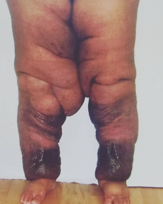 Woman with lymphedema learns to embrace her extremely swollen legs