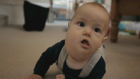 Zoe's baby Harry from Baby Surgeons