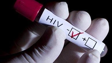 Photo of Aplica Secretaría de Salud pruebas rápidas de VIH en SLP