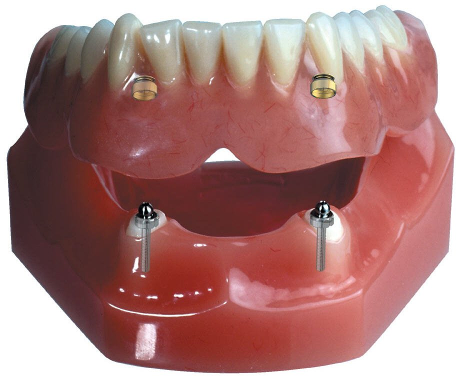 Implant Supported Overdenture (with 2 implants) Snap on ...