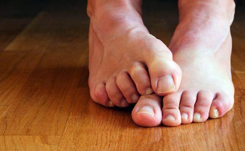 πόδια με μύκητες