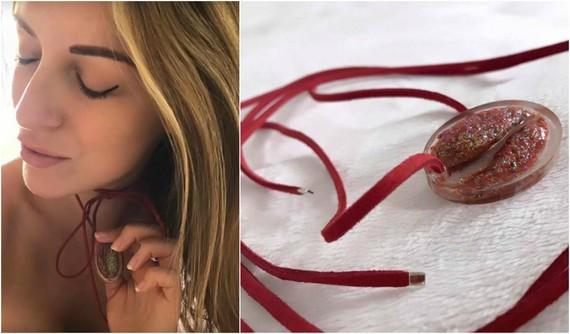 blogueira-transforma-labios-vaginais-em-colar-apos-cirurgia07-thumb-570