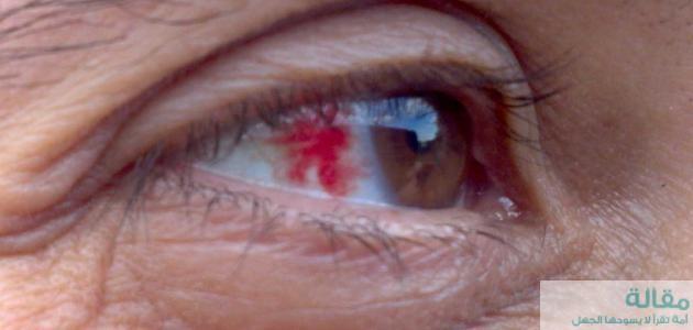 ما هي اسباب ضغط العين