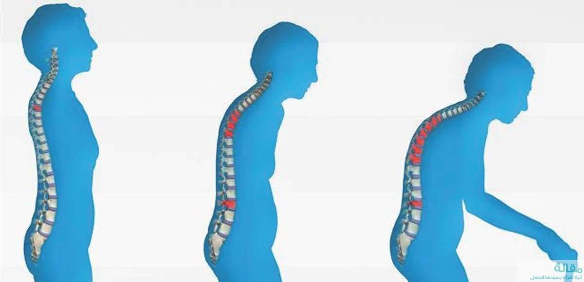 طرق علاج هشاشه العظام واسبابها
