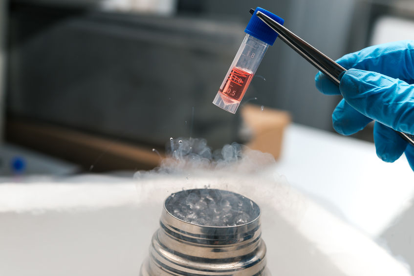 36173035 - a liquid nitrogen bank containing suspension of stem cells. cell culture for the biomedical diagnostic.