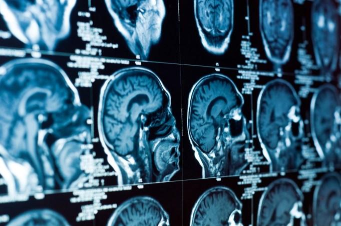 Marijuana does less damage to brain than alcohol