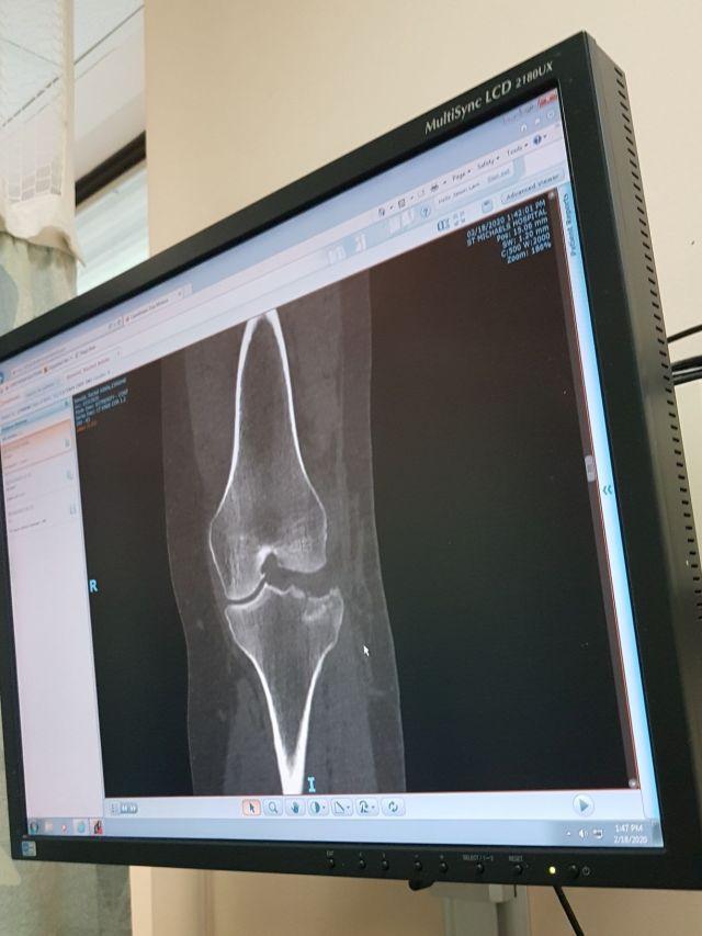 x ray photo of my broken bone.